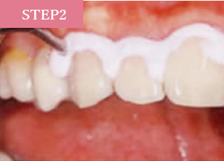 歯の表面に専用のクリーニングペーストを塗ります。
