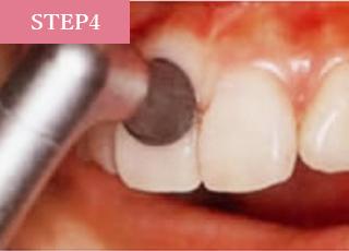 歯肉を傷つけないように、柔らかいラバーカップで歯と歯の境目の汚れを落とします。
