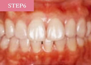 歯の質を強くし輝きを増すために、キレイになった歯面にフッ素を塗布して終了です。