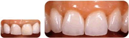 歯(クラウン)の写真