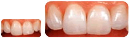 (ラミネートべニア)歯の写真